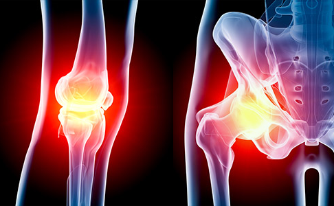 Hip Knee Total Joint.png