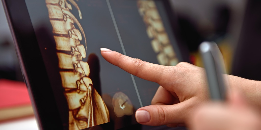SmartTRAK Q218 Spine Recap