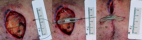 SUTUREGARD wound photo