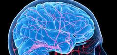 SmartTRAK Neurovascular Module.jpg